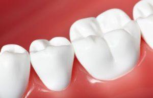 Fort Mill SC Restorative Dentistry