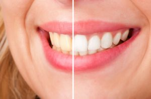 Fort Mill SC Teeth Whitening