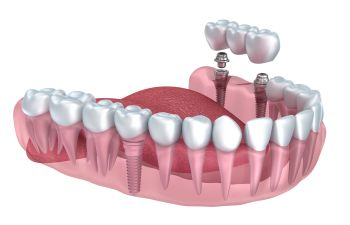 visualisation of a dental bridge