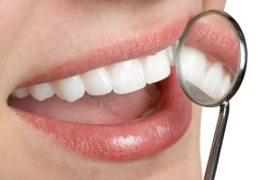 Tooth Colored Fillings in Fort Mill SC