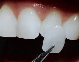 Porcelain Veneers Dentist Fort Mill SC
