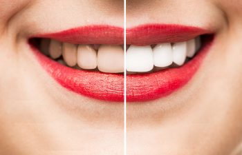 female smile before and after teeth whitening